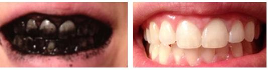 Como Nao Clarear Os Dentes Com Carvao Ativado Dicas Odonto