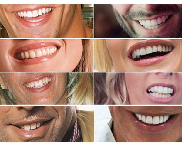 938e72a95 Lentes de contato ou Ortodontia  Depende. Tudo sempre depende em saúde. O  alerta desse artigo vai contra a pressa e o imediatismo que estamos  vivenciando.